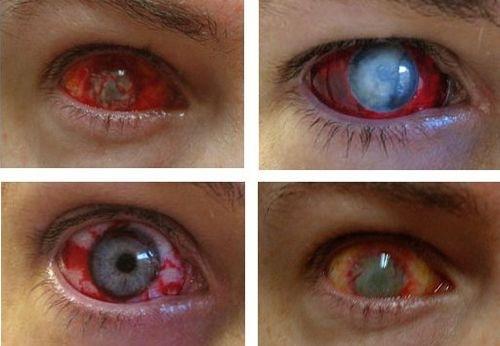 zombie-eyes